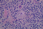 Light microscope image of Hodgkin lymphoma